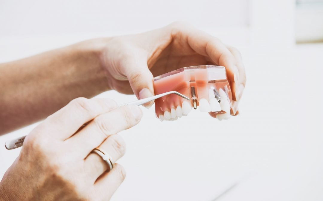 Using a Dental Blog to Simplify Procedures for Patients